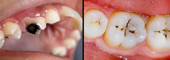 Khi nào phải nhổ bỏ răng sâu?
