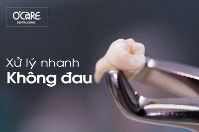 Nho Rang Khon Copy