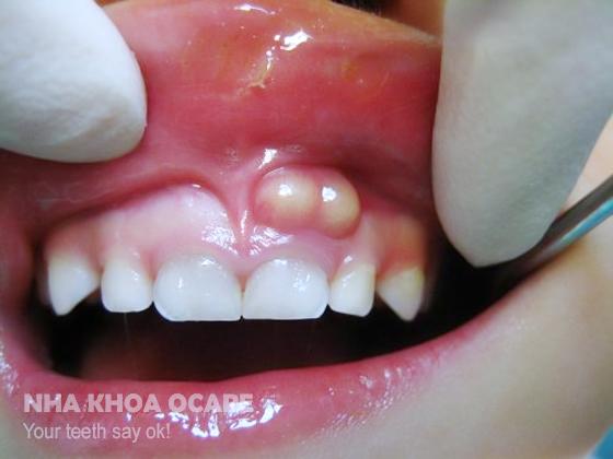 Trẻ bị u nang răng phải làm sao?