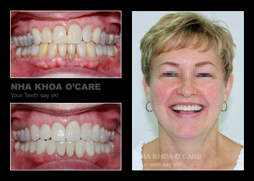 Bọc răng sứ Zirconia cao cấp