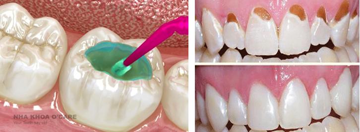 Chữa sâu răng cho người lớn và trẻ em an toàn hiệu quả