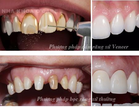Dán răng sứ Veneers thẩm mỹ