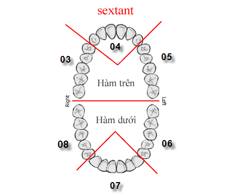 Điều trị cười hở lợi bằng phương pháp phẫu thuật cắt nướu làm dài thân răng