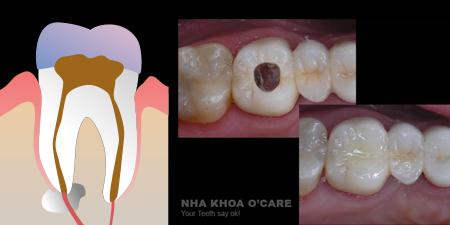 Điều trị nội nha, viêm tủy răng
