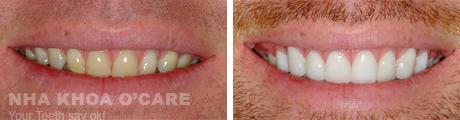 Mặt dán răng sứ Lumineers