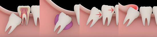 Nhổ răng khôn an toàn, nhanh chóng tại nha khoa O'CARE