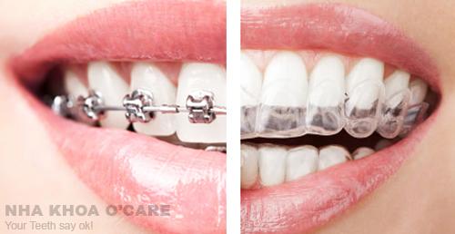 Niềng răng, giải pháp điều chỉnh lại hàm răng lệch lạc, hô móm