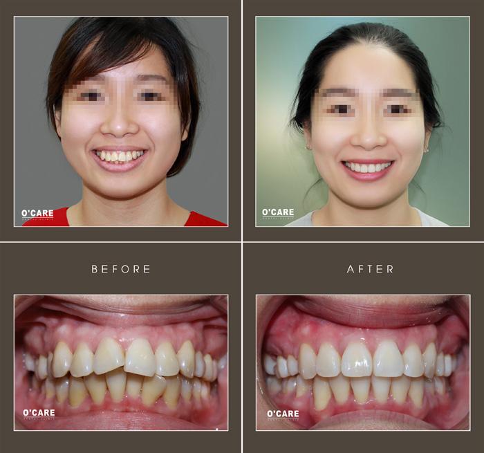Niềng răng trả góp tại Nha Khoa Ocare