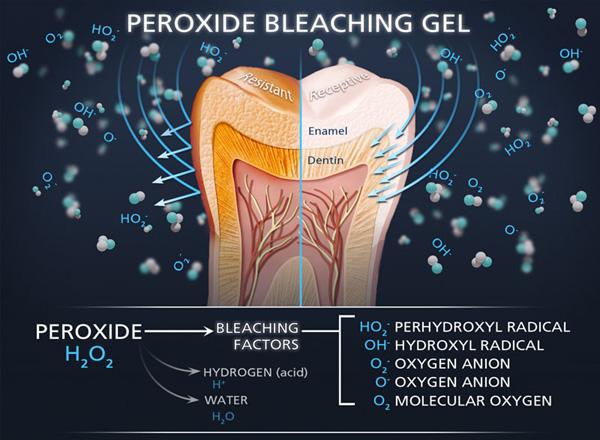 Tẩy trắng răng bằng công nghệ BleachBright
