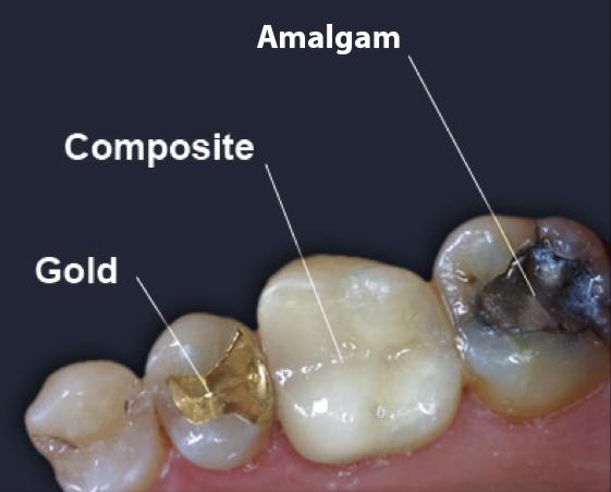 Thông tin cần biết về dịch vụ trám răng