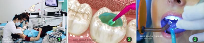 Trám răng thẩm mỹ bằng Composite