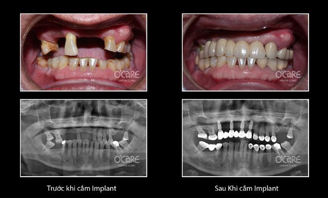 Trồng răng giả Implant tại Nha Khoa O'CARE