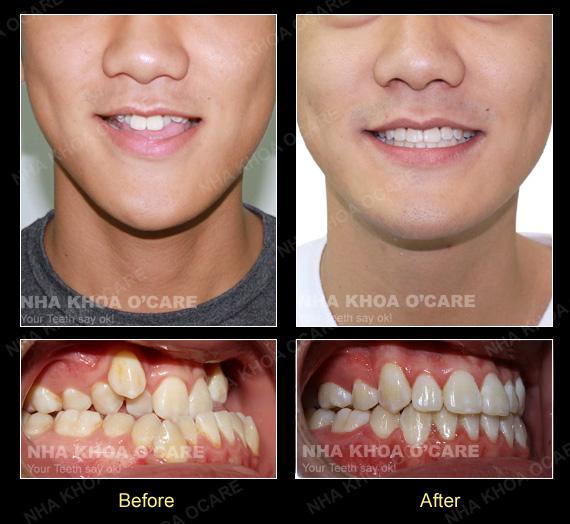 Niềng răng có cải thiện được khớp cắn ngược hay không?
