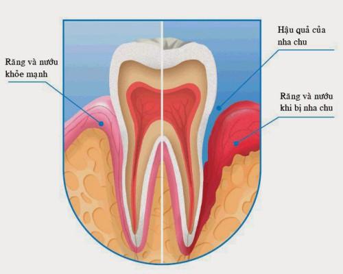 Thường xuyên bị chảy máu chân răng sau khi đánh răng?