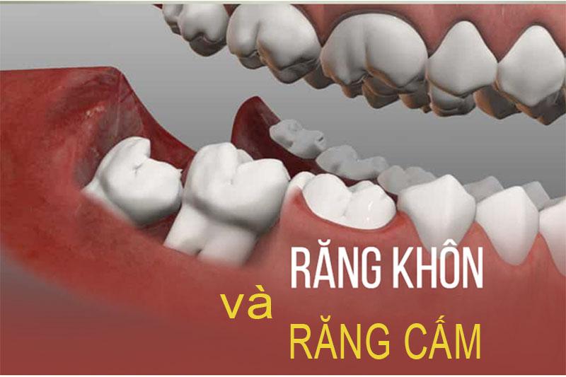 Phan Biet Rang Cam Va Rang Khon 1